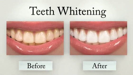 teeth whitening treatment in chennai