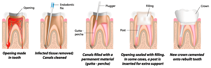 best root canal treatment in chennai