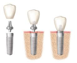 best dental implant clinic in chennai